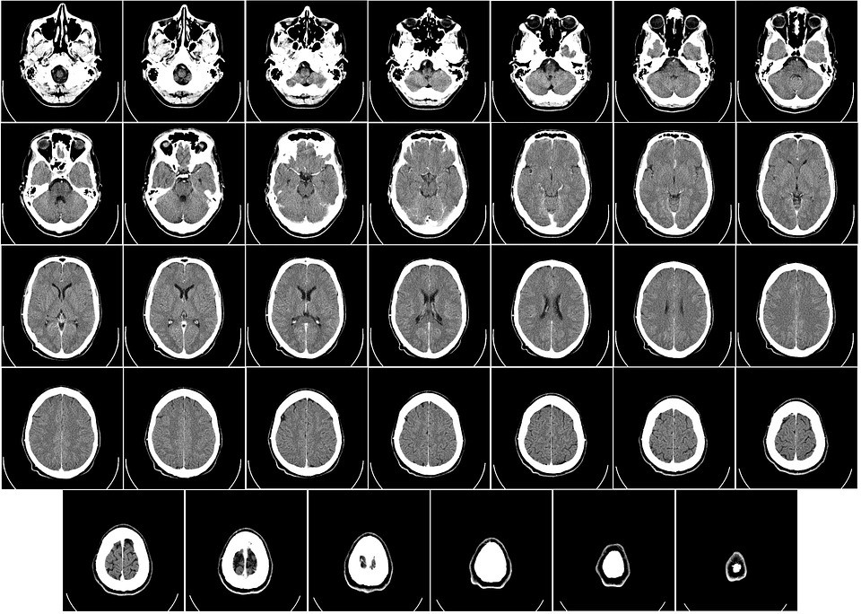 Tomografia ou Ressonância: qual o melhor exame de imagem?